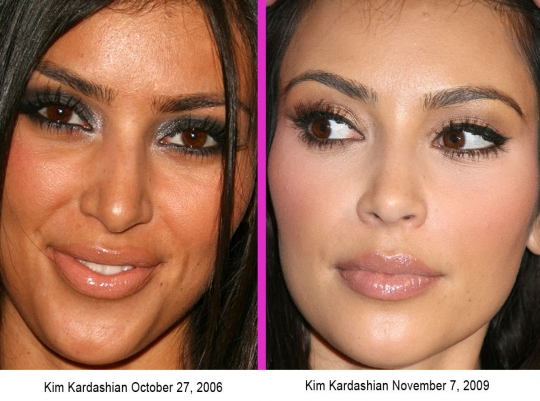 kim-kardashian-nose-job.jpeg