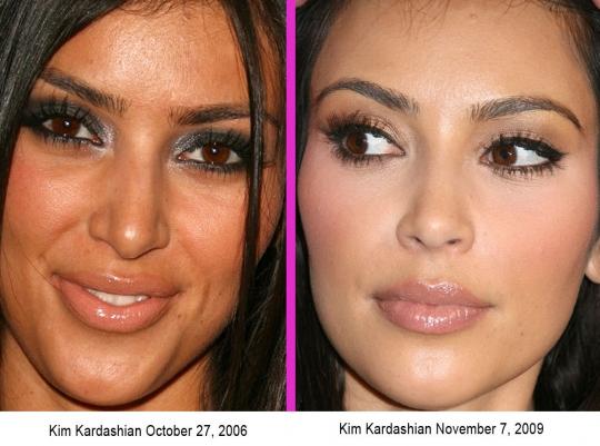 kim-kardashian-nose-job.jpeg